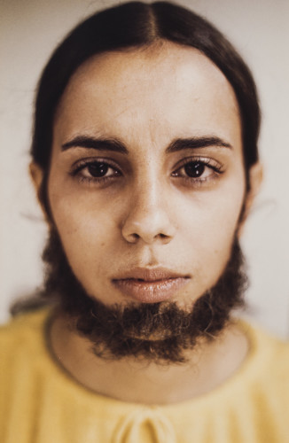 Ana Mendieta - Untitled (Facial Hair Transplants), 1972 -© The Estate of Ana Mendieta Collection, LLC