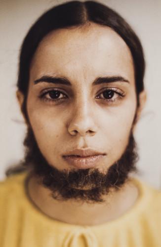 Ana Mendieta - Untitled (Facial Hair Transplants), 1972 -© The Estate of Ana Mendieta Collection, LLC