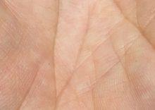 skin benaki